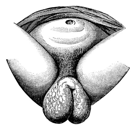 woman vagina: Elephantiasis of the labia majora in women observe a fellah, Cairo, vintage engraved illustration. Usual Medicine Dictionary - Paul Labarthe - 1885. Illustration