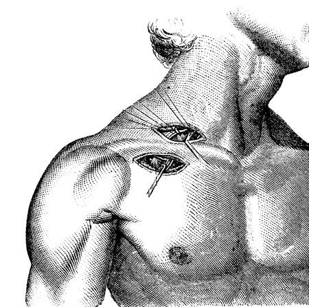 腋窩鎖骨下動脈の結紮、ヴィンテージの図を刻まれています。いつも使っている薬辞典 - Paul Labarthe - 1885