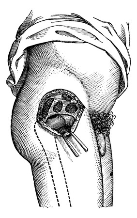 magasin pittoresque: Hip joint opened by the outside, to show the neck of the femur, vintage engraved illustration. Magasin Pittoresque 1875.