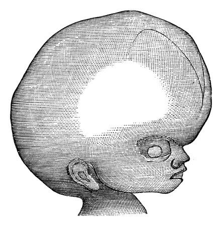 convulsion: Hidrocefalia, cosecha ilustración grabada. Magasin Pittoresque 1875.