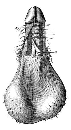 Funzionamento di ipospadia (Processo per Th Anger), vintage illustrazione inciso. Magasin Pittoresque 1875. Archivio Fotografico - 35097783