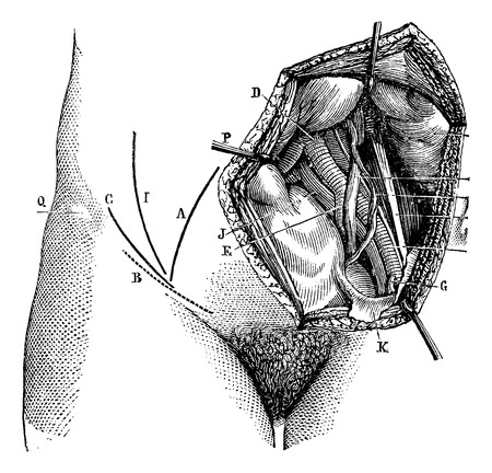 aortic: Fig. 618. Iliac artery and its branches, vintage engraved illustration. Magasin Pittoresque 1875.