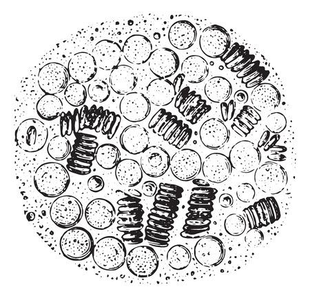 leucemia: Aspecto presenta una gota de sangre en el leucocythemia, cosecha ilustración grabada. Diccionario Usual Medicina por el Dr. Labarthe - 1885.