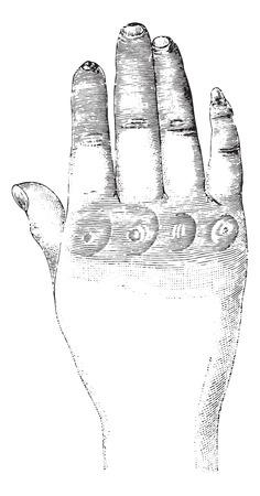 scarring: Sclerosi della mano sinistra (dorsale), vintage illustrazione inciso. Solita dizionario Medicine dal dottor Labarthe - 1885. Vettoriali
