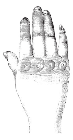 sclerosis: Sclerosis of the left hand (dorsal), vintage engraved illustration. Usual Medicine Dictionary by Dr Labarthe - 1885.