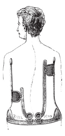 sensitivity: A gear unit against scoliosis, vintage engraved illustration. Usual Medicine Dictionary by Dr Labarthe - 1885. Illustration