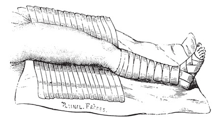 applied: Scultet device half applied, vintage engraved illustration. Usual Medicine Dictionary by Dr Labarthe - 1885.