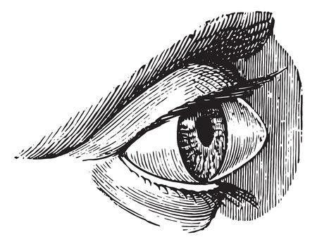 Staphyloma, keratoconus or pellucid, vintage engraved illustration. Usual Medicine Dictionary by Dr Labarthe - 1885. Illustration