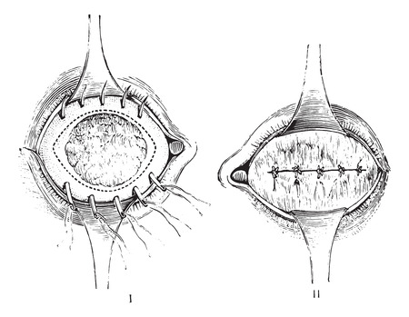 surgical operation: Removal of the anterior segment of the eye with total staphyloma, Suture, after removal of the anterior staphyloma, vintage engraved illustration. Usual Medicine Dictionary by Dr Labarthe - 1885.