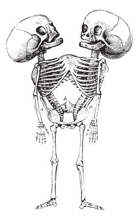 abnormal: Monster Sternopage, vintage engraved illustration. Usual Medicine Dictionary by Dr Labarthe - 1885. Illustration