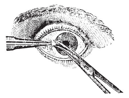 conjunctiva: Strabismus surgery, section of the conjunctiva, vintage engraved illustration. Usual Medicine Dictionary by Dr Labarthe - 1885. Illustration