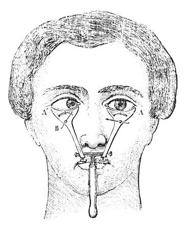 Strabotomy, vintage engraved illustration. Usual Medicine Dictionary by Dr Labarthe - 1885.
