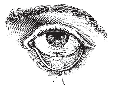 suture: Operation of Symblepharon. Suture of the conjunctiva, vintage engraved illustration. Usual Medicine Dictionary by Dr Labarthe - 1885.
