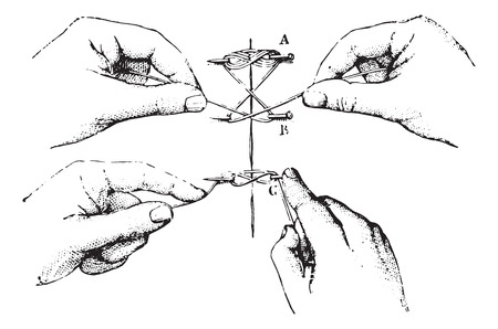 suture: Twisted suture, vintage engraved illustration. Usual Medicine Dictionary by Dr Labarthe - 1885.