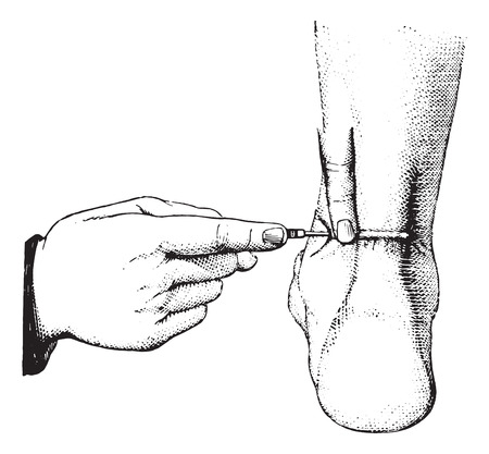 tendon: Tenotomy of the Achilles tendon, vintage engraved illustration. Usual Medicine Dictionary by Dr Labarthe - 1885.
