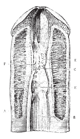 stricture: Narrowing of the urethra several consecutive blennorrhagias, vintage engraved illustration. Usual Medicine Dictionary by Dr Labarthe - 1885. Illustration