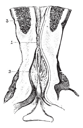 dr: Narrowing of the membranous area of the urethra with dilatation of the prostate area, vintage engraved illustration. Usual Medicine Dictionary by Dr Labarthe - 1885. Illustration