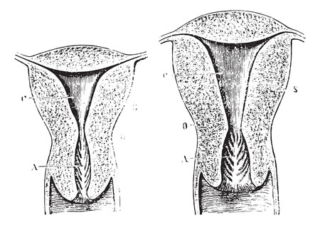 womb: Section of a virgin womb Cup, vintage engraved illustration. Usual Medicine Dictionary by Dr Labarthe - 1885. Illustration