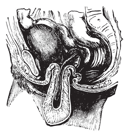 dr: Reversal or inversion of the uterus, vintage engraved illustration. Usual Medicine Dictionary by Dr Labarthe - 1885. Illustration