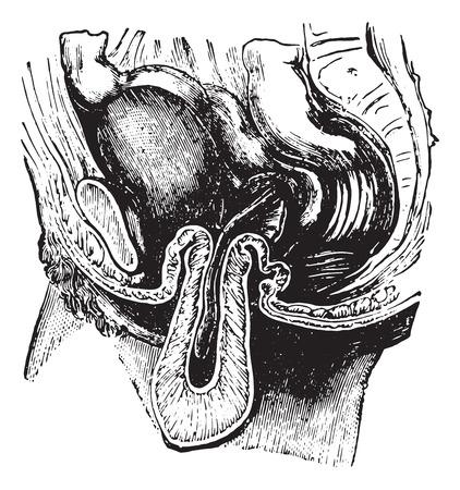umschwung: Umkehr oder Inversion der Geb�rmutter, Jahrgang gravierte Darstellung. �bliche Medizin W�rterbuch von Dr. Labarthe - 1885.