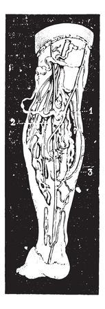 脚の静脈瘤は、ヴィンテージの図を刻まれています。博士 Labarthe - 1885年によって通常医学辞書。  イラスト・ベクター素材