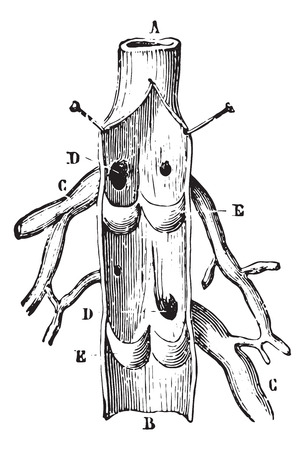 longitudinal: Vein Longitudinal section, vintage engraved illustration. Usual Medicine Dictionary by Dr Labarthe - 1885. Illustration
