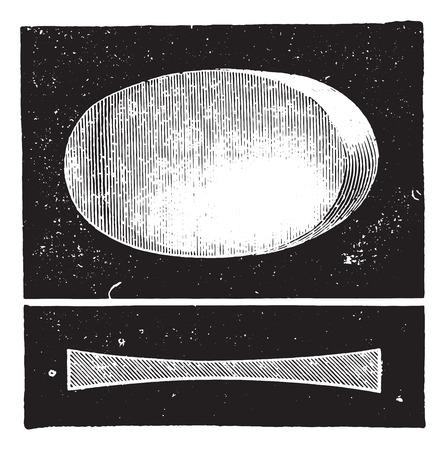 Biconcave lens, vintage engraved illustration. Usual Medicine Dictionary by Dr Labarthe - 1885. Illustration