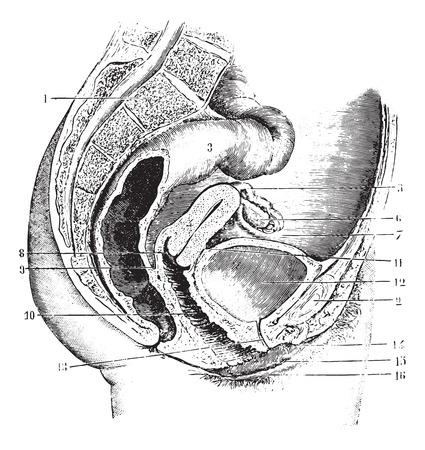 pubis: Female pelvis (antero-posterior section), vintage engraved illustration. Usual Medicine Dictionary by Dr Labarthe - 1885. Illustration