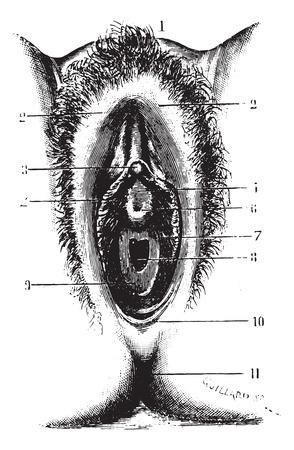 uretra: Vulva en virgen cosecha ilustración grabada,. Diccionario Usual Medicina por el Dr. Labarthe - 1885.