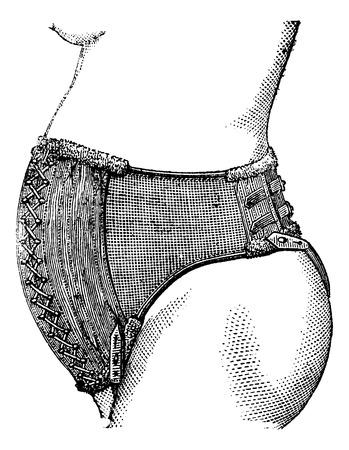 elasticity: Abdominal belt of Dr. Pinard, vintage engraved illustration. Magasin Pittoresque 1875. Illustration