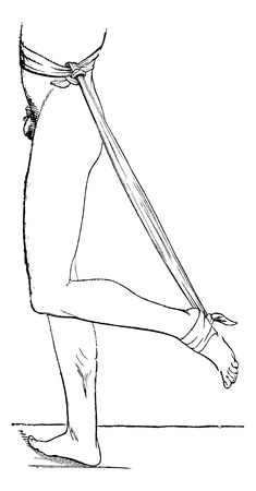 A device extension of the foot and flexion of the leg for tendon rupture, of Achilles, vintage engraved illustration. Magasin Pittoresque 1875. Illustration
