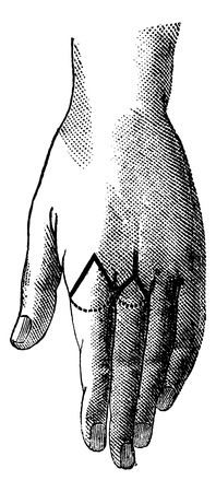 amputation: Amputation of the index by the oval method, vintage engraved illustration. Magasin Pittoresque 1875.
