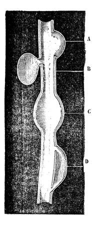 aneurysm: A crateriform aneurysm. B. Saccular aneurysm. C. Fusiform aneurysm. D. Dissecting aneurysm, vintage engraved illustration. Magasin Pittoresque 1875.