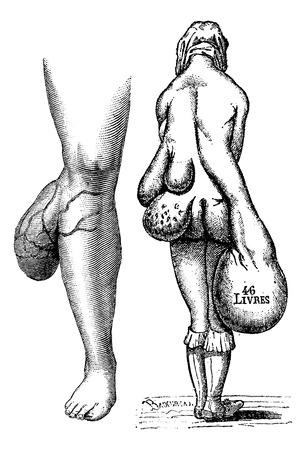 benign: Fig. 767. Lipomas leg, Fig. 768. Multiple lipomas in a woman, vintage engraved illustration. Usual Medicine Dictionary - Paul Labarthe - 1885.
