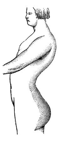 lombaire: La lordose lombaire, illustration vintage grav�. Dictionnaire habitude M�decine - Paul Labarthe - 1885. Illustration
