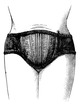 elasticity: Abdominal elastic fabric English front view, vintage engraved illustration. Magasin Pittoresque 1875.