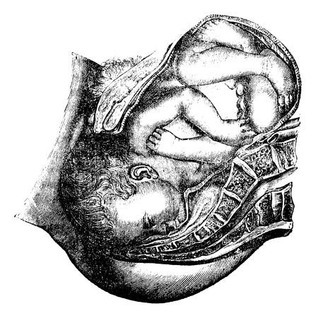 Levering van het hoofd, vintage gegraveerde illustratie. Magasin Pittoresque 1875.