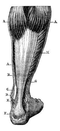 calcaneus: Posterior region of the leg. AA twin B. flexor digitorum. C. the tibialis posterior tendon. D. medial malleolus. E. Achilles tendon, F. insertion of the Achilles tendon at the calcaneus. G. peroneal neck. H. soleus, vintage engraved illustration. Magasin