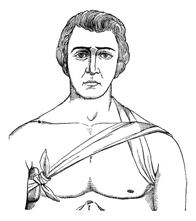 axillary: bandage tie the axillary fold, vintage engraved illustration. Magasin Pittoresque 1875.