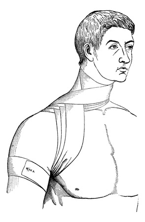 axillary: Bandage crosses the neck and armpit, vintage engraved illustration. Magasin Pittoresque 1875. Illustration