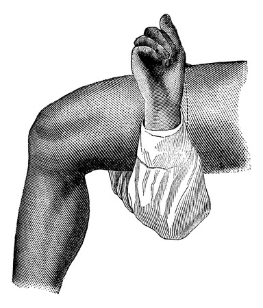 circular muscle: Amputation of the thigh by the circular method (skin incision), vintage engraving illustration. Magasin Pittoresque 1875. Illustration