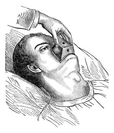 medical preparation: Application of a cone chloroform, vintage engraved illustration. Magasin Pittoresque 1875.