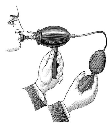 inhale: Powered inhaler, vintage engraved illustration. Magasin Pittoresque 1875.