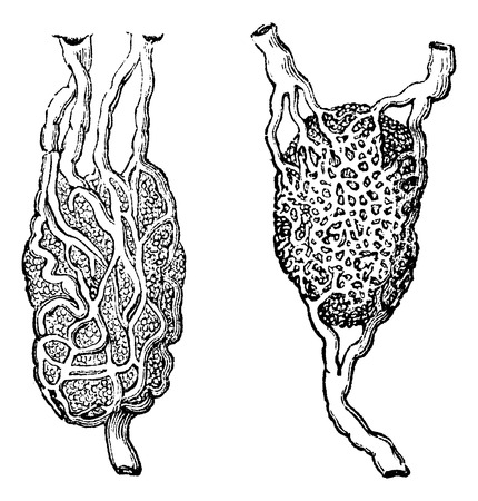 lymphatic vessel: Lymph nodes, vintage engraved illustration. Usual Medicine Dictionary - Paul Labarthe - 1885.