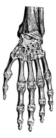 fibrous: Radiocarpal joint, carpal bones them, carpometacarpal and hand (dorsal), vintage engraved illustration. Usual Medicine Dictionary - Paul Labarthe - 1885.