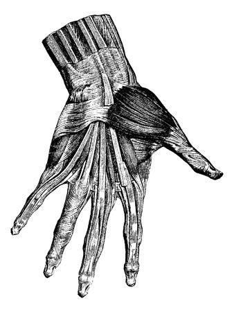 Spieren van de hand (oppervlakkige laag), vintage gegraveerde illustratie. Gebruikelijke Geneeskunde Woordenboek - Paul Labarthe - 1885.
