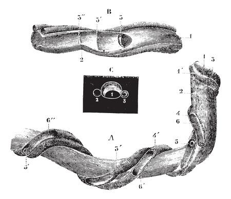 encogimiento: El cord�n umbilical, cosecha ilustraci�n grabada. Usual Diccionario Medicina - Paul Labarthe - 1885.