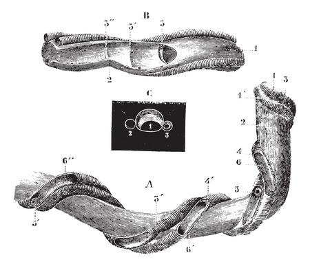shrinkage: Umbilical cord, vintage engraved illustration. Usual Medicine Dictionary - Paul Labarthe - 1885. Illustration