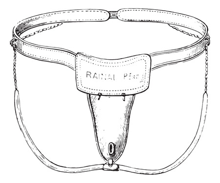 chastity: Device against masturbation in girls, vintage engraved illustration. Usual Medicine Dictionary - Paul Labarthe - 1885.