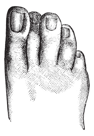 incarnation: Faulty position of the second toe, vintage engraved illustration. Usual Medicine Dictionary - Paul Labarthe - 1885.